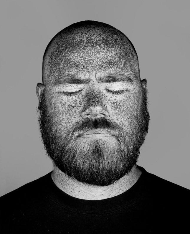 Bộ ảnh gây sốc về tác hại của ánh nắng mặt trời lên da người - ảnh 5