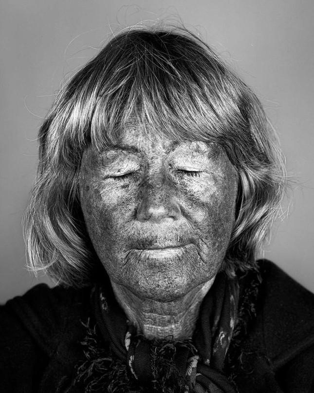 Bộ ảnh gây sốc về tác hại của ánh nắng mặt trời lên da người - ảnh 8