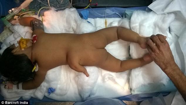 Kỳ lạ bé gái 2 tuổi mọc chân thứ 3 ở lưng - ảnh 1