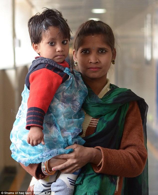 Kỳ lạ bé gái 2 tuổi mọc chân thứ 3 ở lưng - ảnh 2