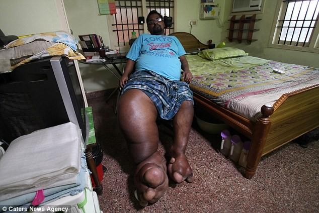 Chàng trai mắc bệnh lạ khiến chân to bằng một con voi sơ sinh - ảnh 1