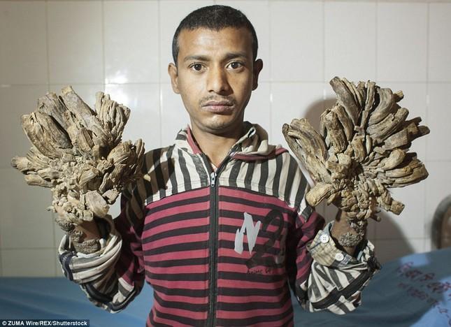 Số phận nghiệt ngã của nam thanh niên chân tay mọc đầy rễ cây - ảnh 1