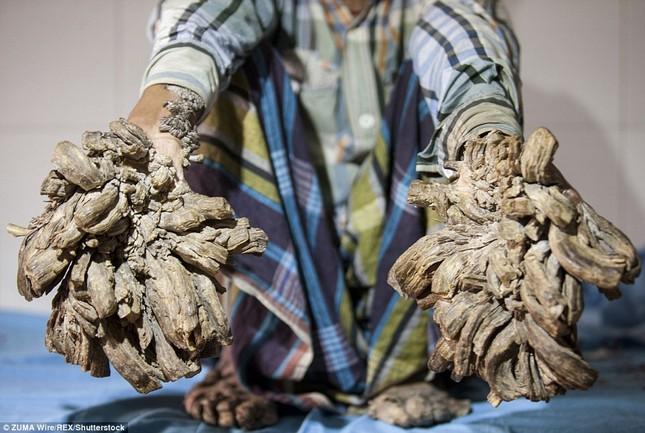 Số phận nghiệt ngã của nam thanh niên chân tay mọc đầy rễ cây - ảnh 2