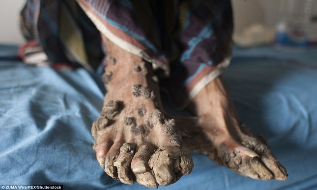 Số phận nghiệt ngã của nam thanh niên chân tay mọc đầy rễ cây - ảnh 3