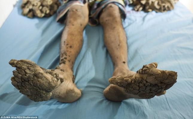 Số phận nghiệt ngã của nam thanh niên chân tay mọc đầy rễ cây - ảnh 4