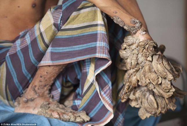 Số phận nghiệt ngã của nam thanh niên chân tay mọc đầy rễ cây - ảnh 7