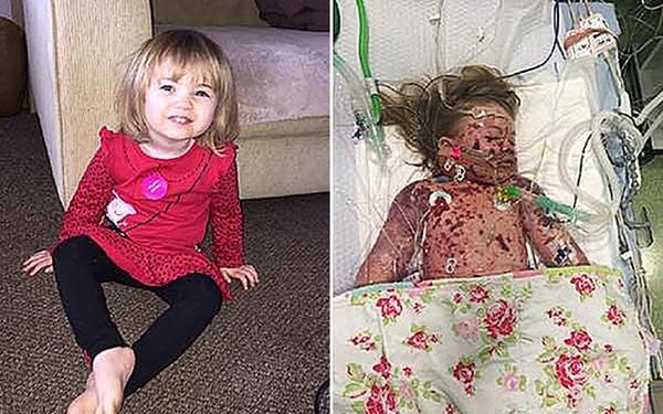 Cái chết của bé 2 tuổi viêm màng não cảnh tỉnh các bậc cha mẹ - ảnh 1