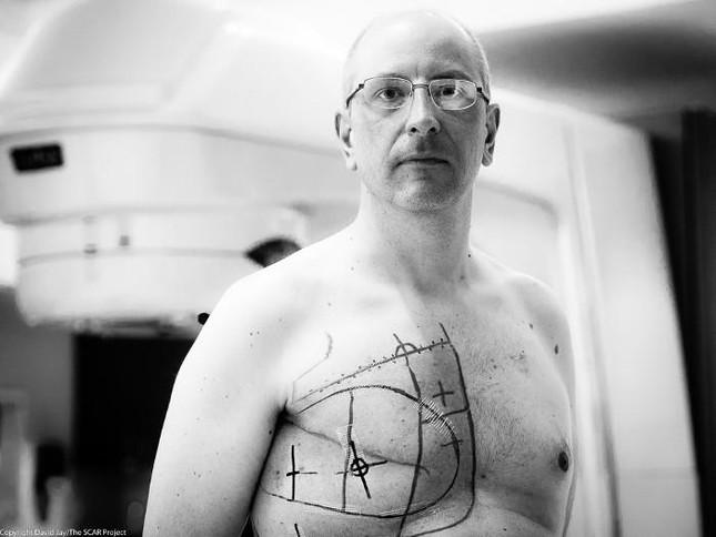Bi hài chuyện người đàn ông bị ung thư vú - ảnh 1