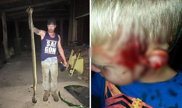 Kinh hãi phát hiện trăn 3 mét cắn cậu bé 6 tuổi khi đang ngủ - ảnh 1