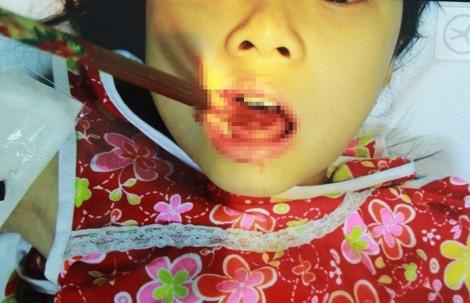 Đang ăn, bé gái bị đũa đâm thủng lưỡi - ảnh 1