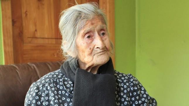 60 năm thai nhi nằm trong bụng bà cụ 91 tuổi mà không biết - ảnh 1