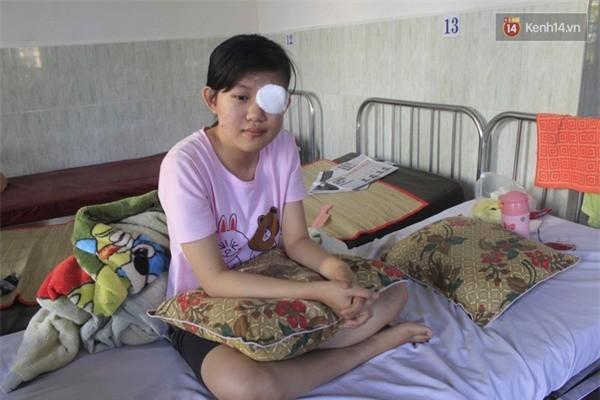 Nữ sinh mù mắt vĩnh viễn sau sự cố pháo hoa ở Quảng Ngãi - ảnh 1