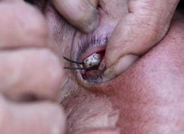 Bác sĩ bó tay vì cụ bà mắc bệnh 'nước mắt hóa đá' - ảnh 1