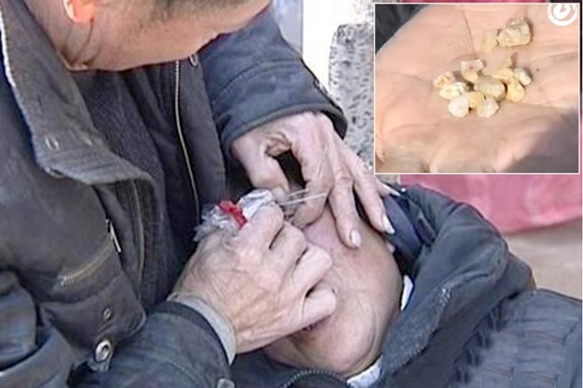 Bác sĩ bó tay vì cụ bà mắc bệnh 'nước mắt hóa đá' - ảnh 2