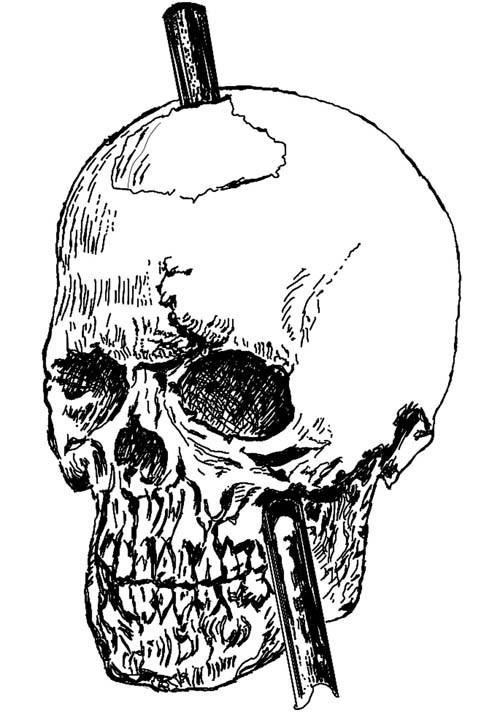 Bí ẩn những trường hợp bị đâm xuyên não vẫn sống - ảnh 2