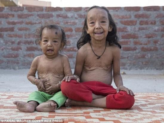 Xót xa hai chị em ruột mắc căn bệnh lão hóa 'không thuốc chữa' - ảnh 1