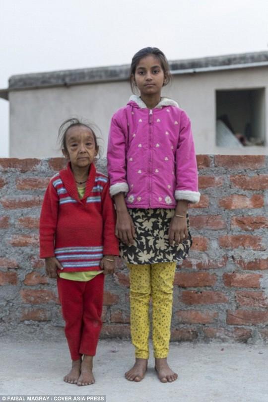 Xót xa hai chị em ruột mắc căn bệnh lão hóa 'không thuốc chữa' - ảnh 2