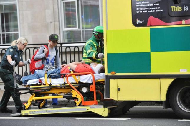 Bị cắt lìa tai vì ngồi xe buýt 2 tầng ở Anh - ảnh 1