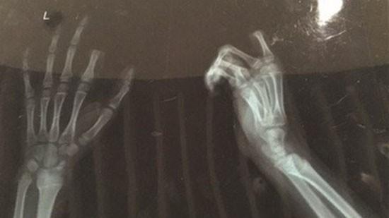 Bé trai tự cắt đứt ngón tay vì bị mắng dùng smartphone nhiều - ảnh 1