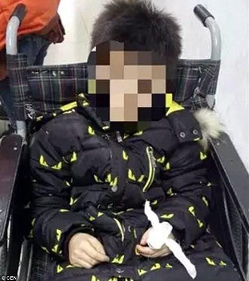 Bé trai tự cắt đứt ngón tay vì bị mắng dùng smartphone nhiều - ảnh 2