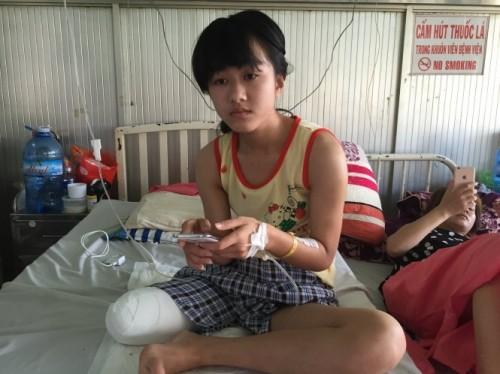 Vụ nữ sinh bị mất chân 'oan': Trường hợp bị hoại tử chân rất ít - ảnh 1