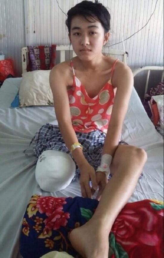 Sở Y tế Đắk Lắk xin lỗi nữ sinh lớp 10 bị cưa chân 'oan' - ảnh 1