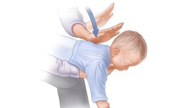 Cách sơ cứu hóc dị vật bằng thủ thuật Heimlich ai cũng nên biết - ảnh 1