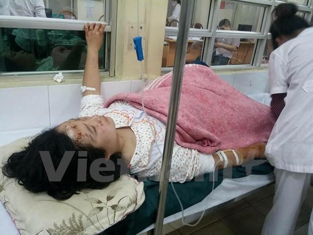 Nạn nhân vụ nổ ở Văn Phú: Kính văng khắp người, khâu 40 mũi - ảnh 1