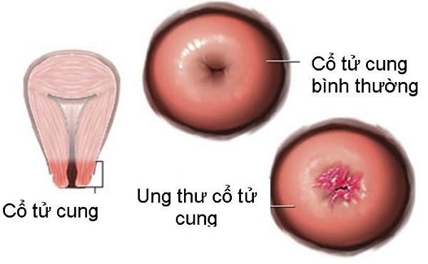 Ung thư cổ tử cung và 'tất tật' những điều cần biết - ảnh 1