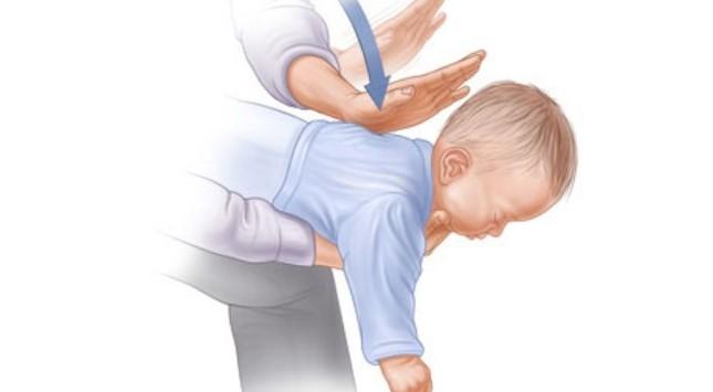 Cách sơ cứu trẻ nhỏ bị mắc dị vật đường hô hấp - ảnh 1