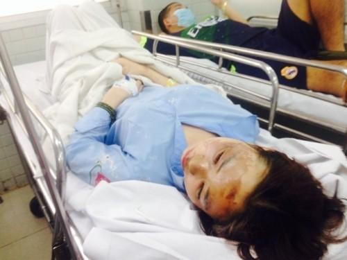 Tạm thời bắt giữ nghi can tạt axit 2 nữ sinh ở Sài Gòn - ảnh 2