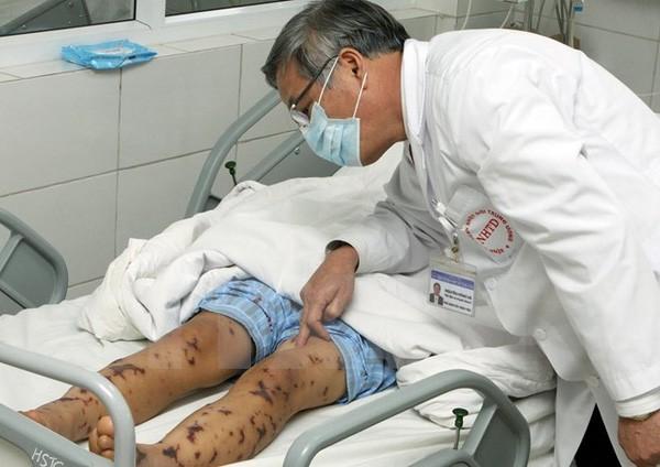 Hà Nội: Phát hiện ca nhiễm não mô cầu đầu tiên, cách ly 27 người - ảnh 1