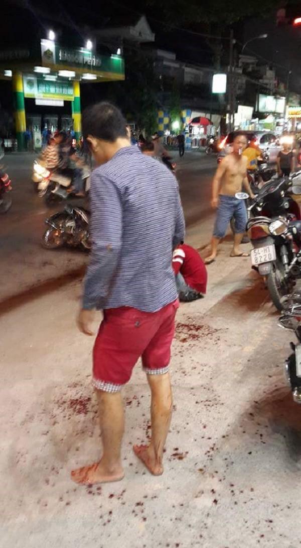 Nhận diện côn đồ truy sát chém lìa tay thanh niên giữa Sài Gòn - ảnh 1