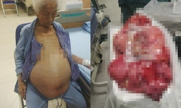 Đồng Nai: Phẫu thuật lấy khối u nặng 13 kg từ bụng bà cụ 100 tuổi - ảnh 1