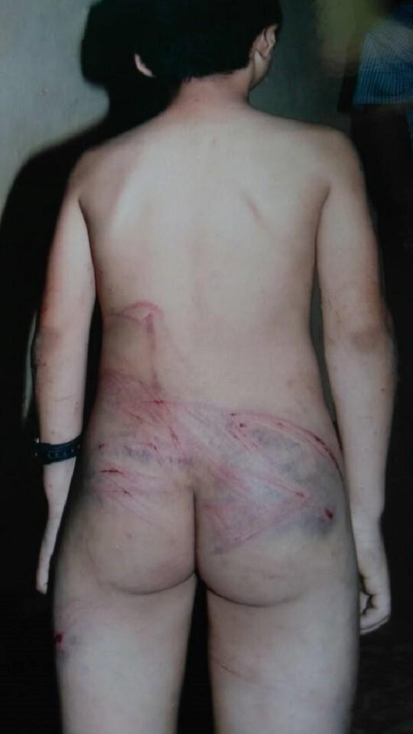Để dê vào vườn hàng xóm, bé trai bị bố dùng dây điện đánh dã man - ảnh 1