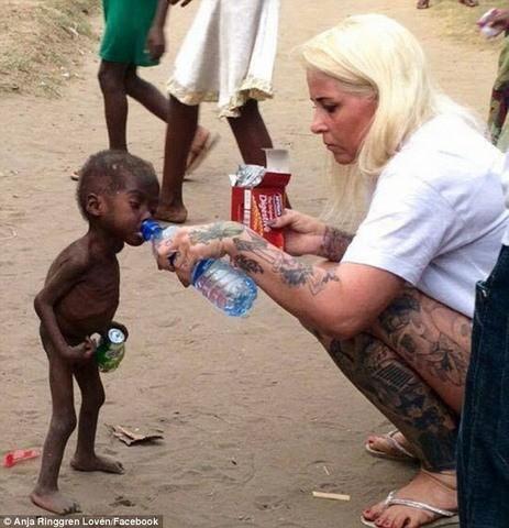 """Sự hồi phục kỳ diệu của em bé """"phù thủy"""" Nigeria - ảnh 1"""