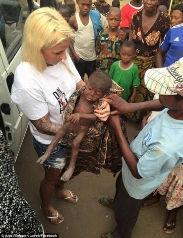 """Sự hồi phục kỳ diệu của em bé """"phù thủy"""" Nigeria - ảnh 2"""