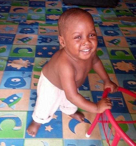"""Sự hồi phục kỳ diệu của em bé """"phù thủy"""" Nigeria - ảnh 3"""