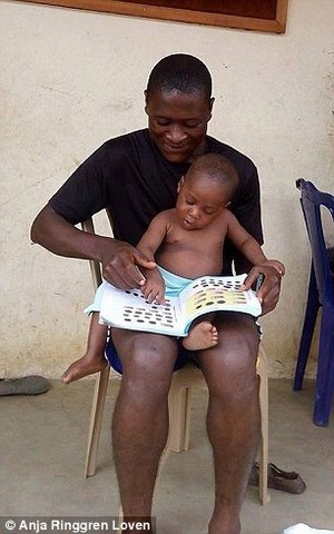 """Sự hồi phục kỳ diệu của em bé """"phù thủy"""" Nigeria - ảnh 4"""