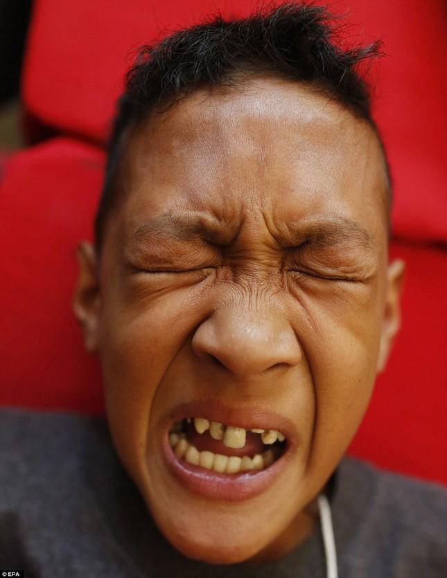300 trẻ em đau đớn trong lễ cắt bao quy đầu ở Philippines - ảnh 2