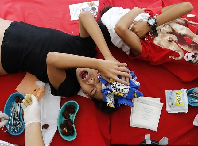 300 trẻ em đau đớn trong lễ cắt bao quy đầu ở Philippines - ảnh 7
