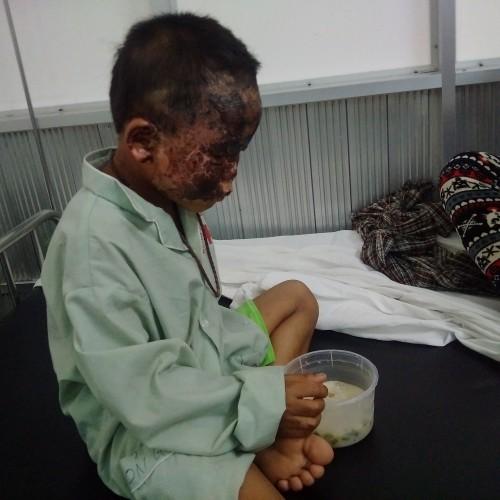 Cậu bé bị bỏng cả khuôn mặt do lấy xăng nhóm bếp - ảnh 1