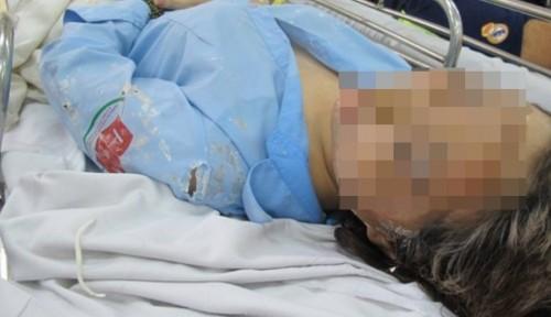 Vụ tạt axit nữ sinh ở Sài Gòn: 'Thợ xăm' tạt nhầm mục tiêu - ảnh 2