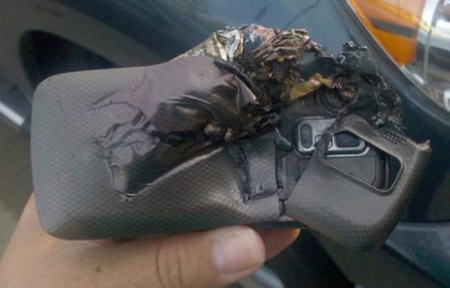 Bị bỏng nặng vì điện thoại di động phát nổ trong túi quần - ảnh 1