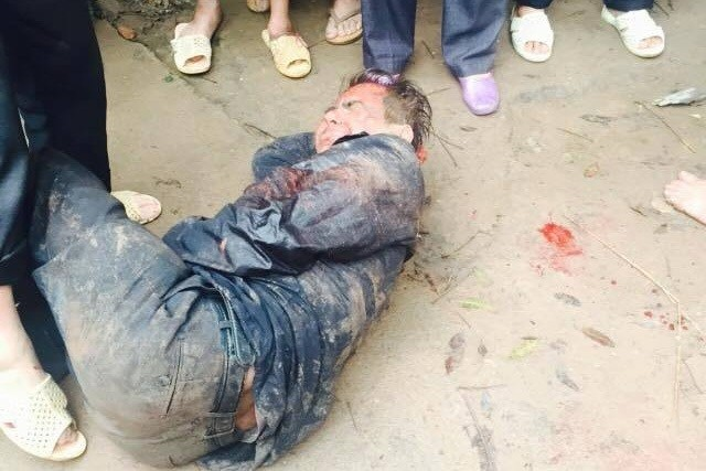 Bắc Giang: Kẻ trộm chó xả súng vào người dân đã tử vong - ảnh 1