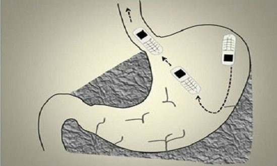 Phẫu thuật lấy điện thoại nhỏ nhất thế giới bị nuốt vào bụng - ảnh 1