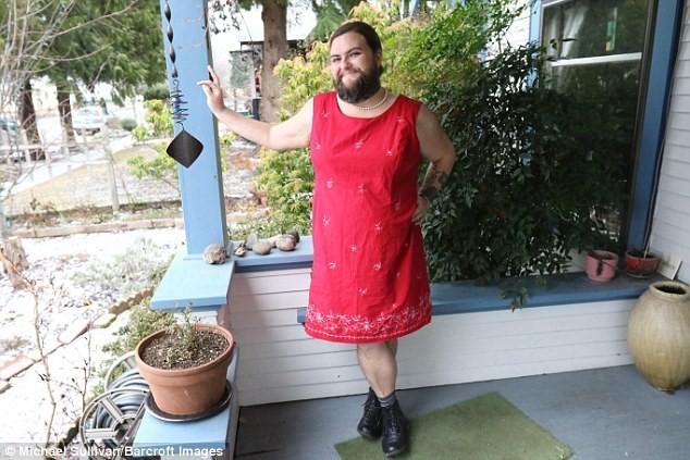 Người phụ nữ tự thấy mình 'quyến rũ' với râu quai nón - ảnh 1