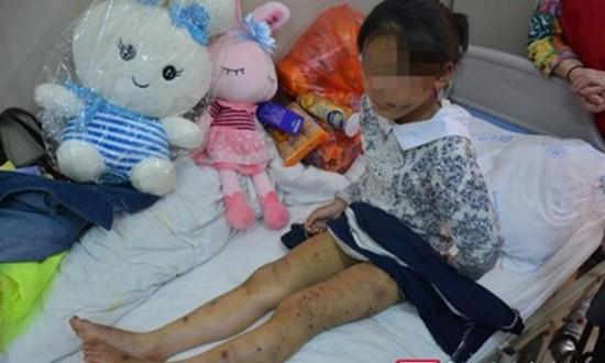 Bé 10 tuổi Trung Quốc bị mẹ nuôi kẹp lưỡi - ảnh 1