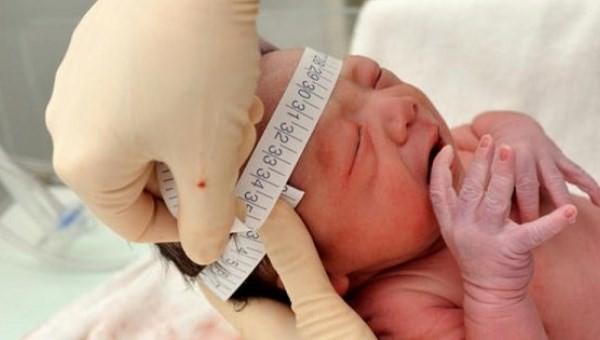 Thông tin chính thức về vụ bác sỹ mổ trúng đầu trẻ sơ sinh - ảnh 1