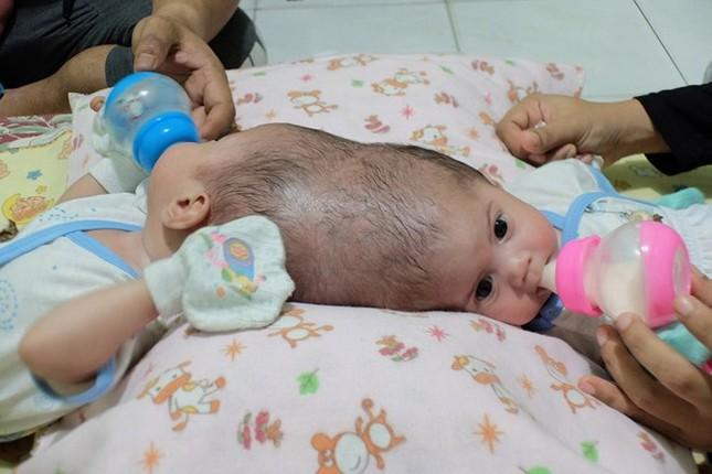 Hai bé gái 4 tháng tuổi bị dính liền đầu thương tâm - ảnh 1